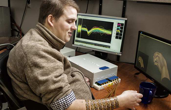 NeuroLife's first patient demonstrates improved hand mobility